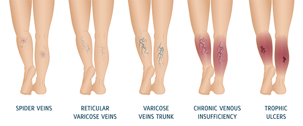 bb8083a139 Chronic venous ulcers are a consequence of Chronic venous insufficiency (CVI)  and both these are covered in this section. CVI is a condition where the  veins ...