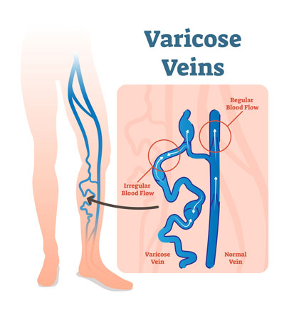 Varicose Veins Treatment Adelaide, SA | Laser Therapy St
